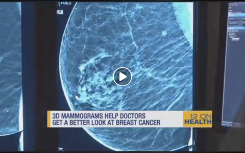 3D Mammography Image