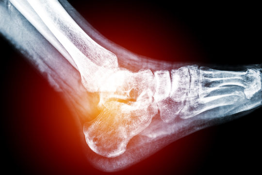 Lateral view of heel of human foot in X-ray (blue on black background), with pains on hell and Calcaneus bone.