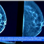 Image of Breast Imaging form SBH Women's Health Center